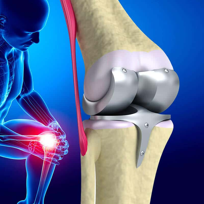 Disadvantages of Knee Replacement Surgery