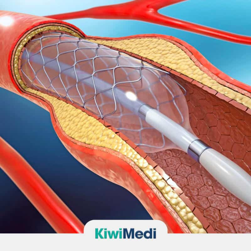 Risks and Complications of Angioplasty (Stenting) Procedure