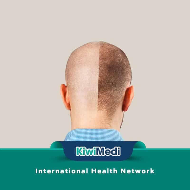 Best Hair Transplant UK