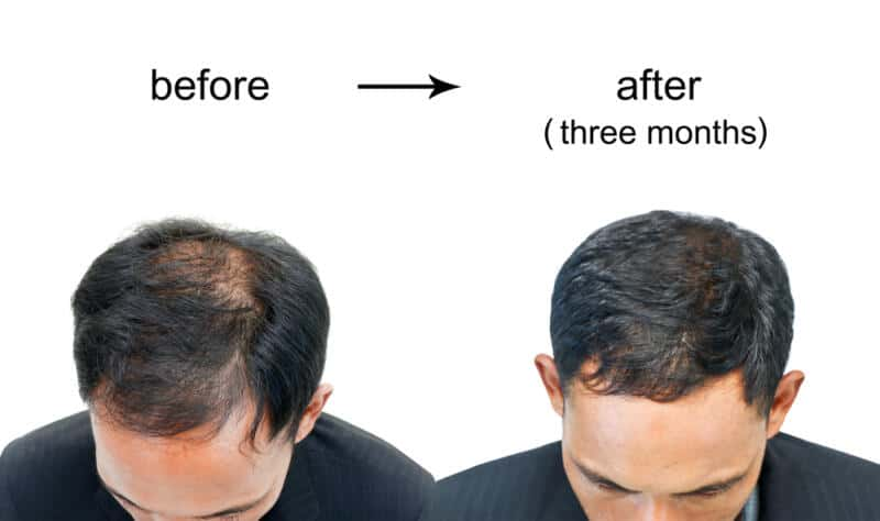 After a Hair Transplant