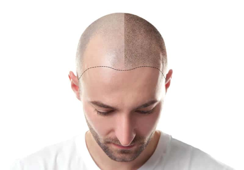 After a Hair Transplant: What to Expect
