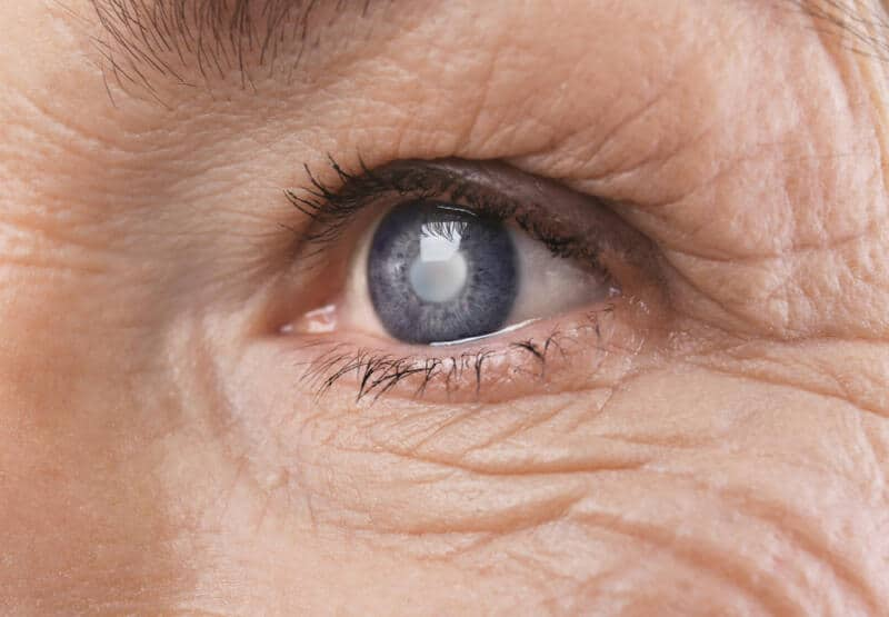 Cataract: Meaning, Symptoms, Treatment & Recovery