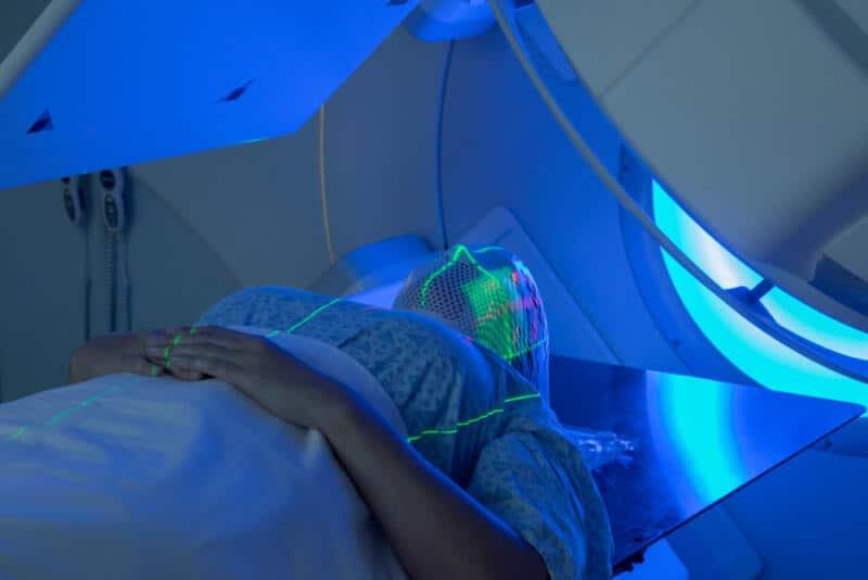 Radiotherapy